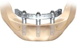 Имплантацию зубов нижней челюсти