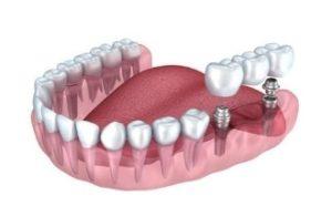 имплантация нижних зубов жевательных